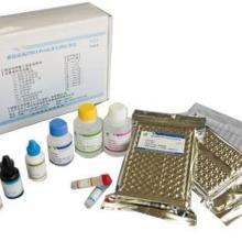 供应人芳香烃受体(AhR)ELISA试剂盒
