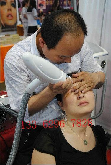 激光洗纹身祛斑治疗原理:采用宝石调q模式