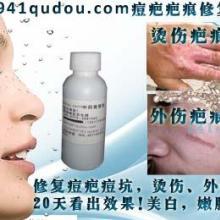 供应祛斑美白护肤品941qudou中药果酸批发