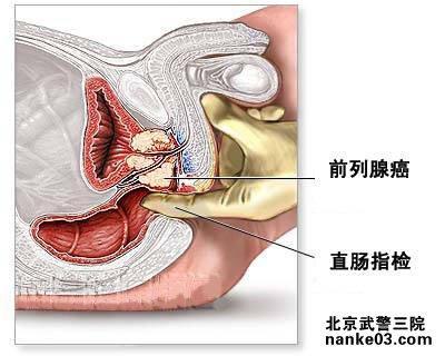 症状女性感染少女图图片展示图片性感霉菌高清图片
