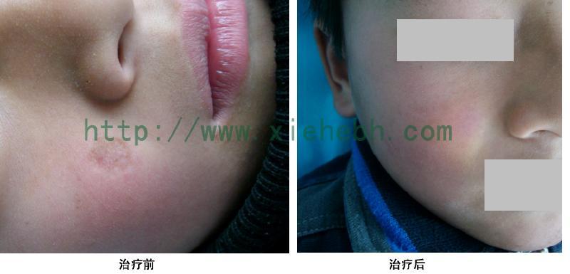 疤痕部位组织细胞比较敏感,使用外部割除或磨削的方法虽然可以祛除