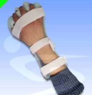 手指分指板矫形器图片