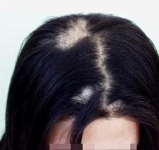 是什么原因导致斑秃的;