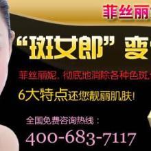 治疗黄褐斑的中成药/黄褐斑的中医治疗