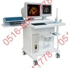 供应B型超声诊断仪