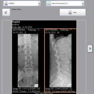 碘化铯drDR升级改造数字化X光图片