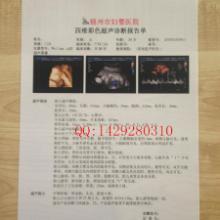 供应瓷白双面激光B超彩超高清打印胶片 PET胶片150um厚批发