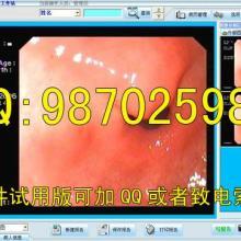 供应口腔镜影像工作站口腔科图文报告口腔科工作站软件批发
