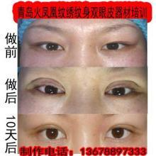 供应韩式无痕双眼成型快恢复快!