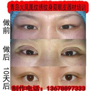 韩式无痕双眼成型快恢复快图片